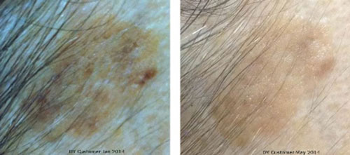 Actinic Keratosis Healed with Copper Peptides